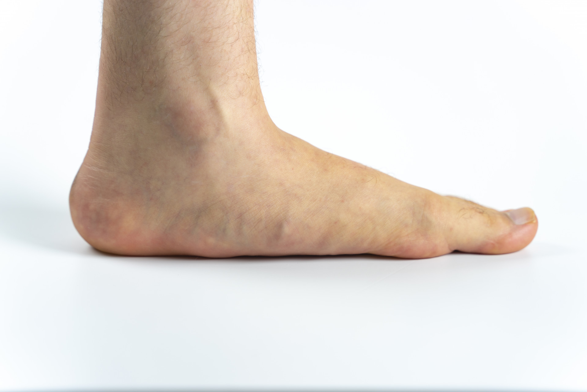 Falling Arches: Adult Acquired Flatfoot